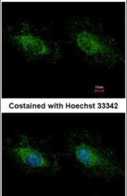 HK3 Antibody (PA5-29304)