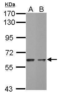 MST2 Antibody (PA5-29320) in Western Blot