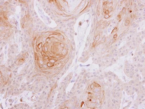 MYLK2 Antibody (PA5-29324)
