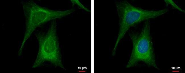 GCK Antibody (PA5-29325) in Immunofluorescence