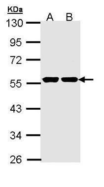 GCK Antibody (PA5-29325) in Western Blot