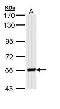 Lyn Antibody (PA5-29329) in Western Blot