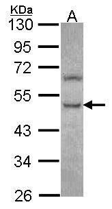 PHKG2 Antibody (PA5-29332) in Western Blot