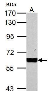 PKM Antibody (PA5-29339) in Western Blot