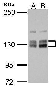 PPIP5K2 Antibody (PA5-29340) in Western Blot