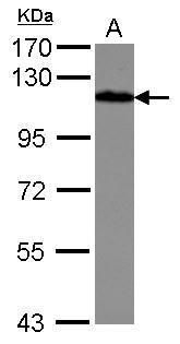 Drebrin Antibody (PA5-29346) in Western Blot