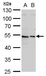 Fibulin 3 Antibody (PA5-29347) in Western Blot