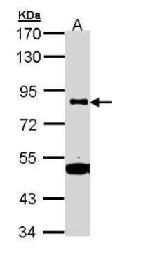 CD61 Antibody (PA5-29352)