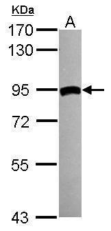 TGM2 Antibody (PA5-29356) in Western Blot