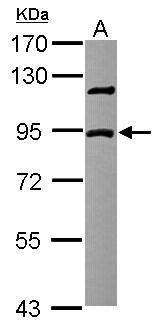 DCBLD2 Antibody (PA5-29360) in Western Blot