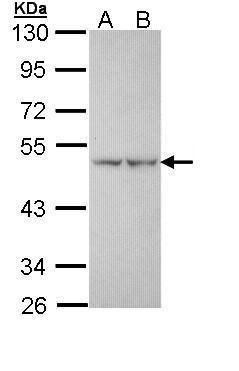 PFKFB1 Antibody (PA5-29363) in Western Blot