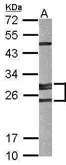 Adenylate Kinase 2 Antibody (PA5-29365) in Western Blot