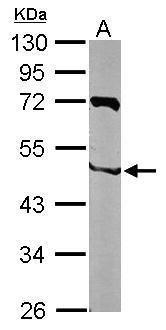 NIPA Antibody (PA5-29367) in Western Blot