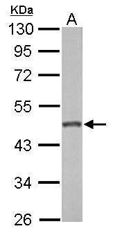 GALK2 Antibody (PA5-29371) in Western Blot
