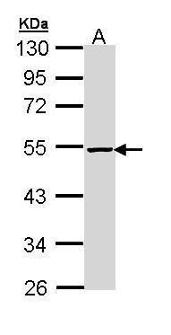 PIP4K2B Antibody (PA5-29372) in Western Blot