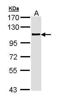 PLK4 Antibody (PA5-29373) in Western Blot