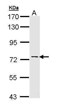 Adenylate Kinase 7 Antibody (PA5-29375) in Western Blot