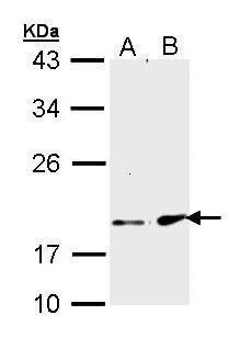 FGF21 Antibody (PA5-29386) in Western Blot