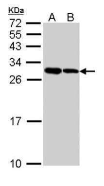 ARC Antibody (PA5-29389) in Western Blot
