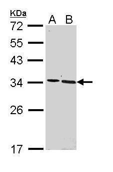 SFRP2 Antibody (PA5-29390) in Western Blot