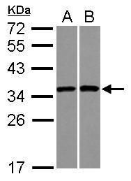 RPS3A Antibody (PA5-29398) in Western Blot