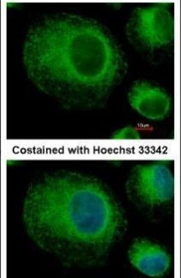 BAP31 Antibody (PA5-29400)