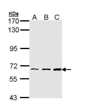 PIP5K1A Antibody (PA5-29405) in Western Blot