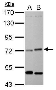 HRI Antibody (PA5-29409) in Western Blot