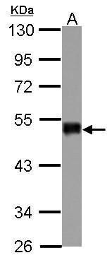 SNIP1 Antibody (PA5-29412) in Western Blot