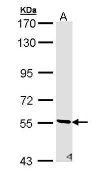 STK32C Antibody (PA5-29414) in Western Blot