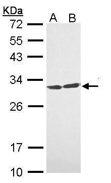 14-3-3 theta Antibody (PA5-29421) in Western Blot