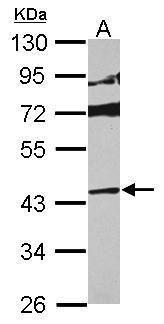 p38 MAPK delta Antibody (PA5-29423)