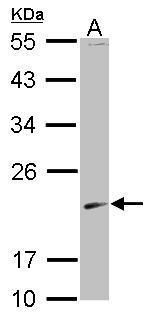 SKP1 Antibody (PA5-29424) in Western Blot