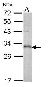 p53DINP1 Antibody (PA5-29430) in Western Blot