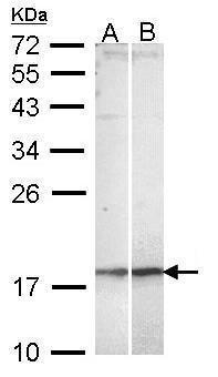 KappaB ras2 Antibody (PA5-29432) in Western Blot