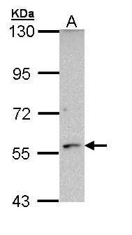 CYP21A2 Antibody (PA5-29441) in Western Blot
