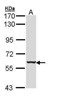 Cytokeratin 4 Antibody (PA5-29463) in Western Blot