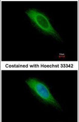 HMGCS1 Antibody (PA5-29488) in Immunofluorescence