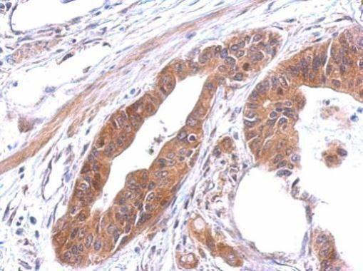 alanyl-tRNA Synthetase Antibody (PA5-29496)