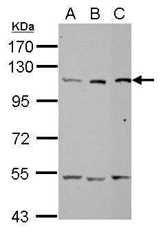alanyl-tRNA Synthetase Antibody (PA5-29496) in Western Blot