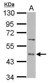 ENTPD5 Antibody (PA5-29503) in Western Blot