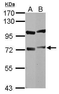 DYNC1I1 Antibody (PA5-29504) in Western Blot