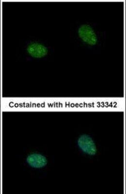 PRICKLE3 Antibody (PA5-29513)