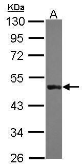 Cytokeratin 31 Antibody (PA5-29522) in Western Blot