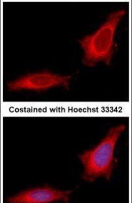 GANC Antibody (PA5-29527)