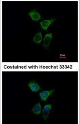 ERO1L Antibody (PA5-29535)