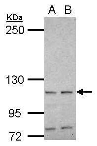 HSPA4 Antibody (PA5-29539) in Western Blot