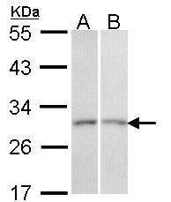 CEACAM6 Antibody (PA5-29551) in Western Blot