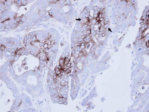 CEACAM6 Antibody (PA5-29552) in Immunohistochemistry (Paraffin)