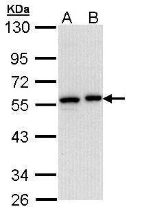 CEACAM6 Antibody (PA5-29552) in Western Blot